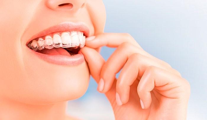 Dentes tortos? O Invisalign é a solução mais inovadora.