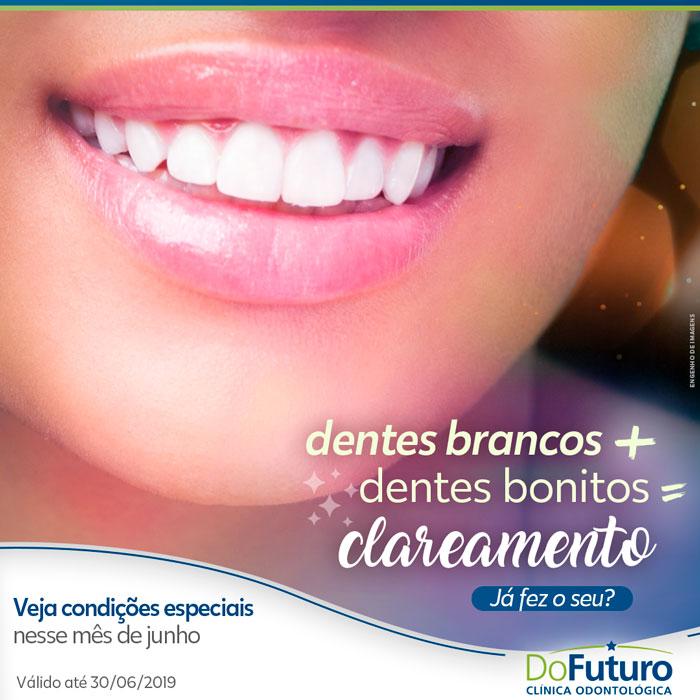 Dentes brancos são sinônimos de um sorriso bonito!