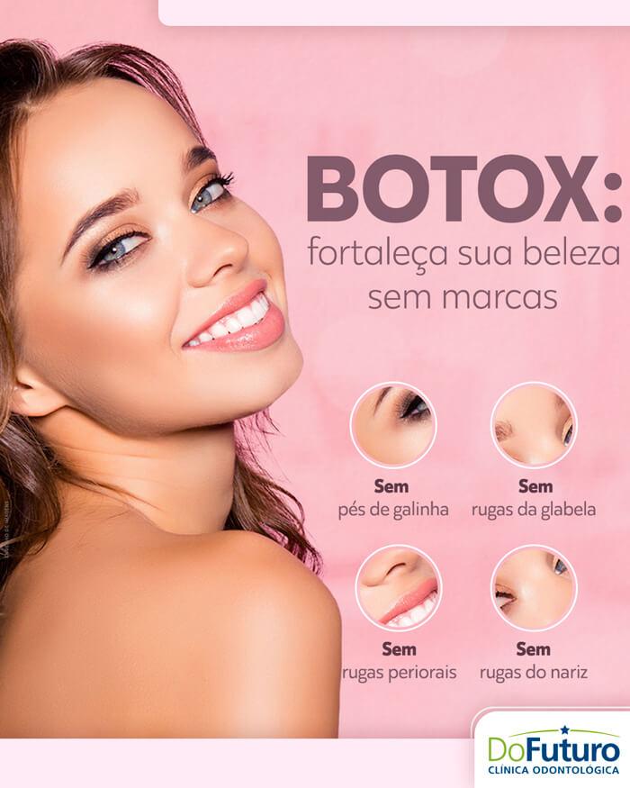 Botox: Acabe com as suas marcas de expressão!