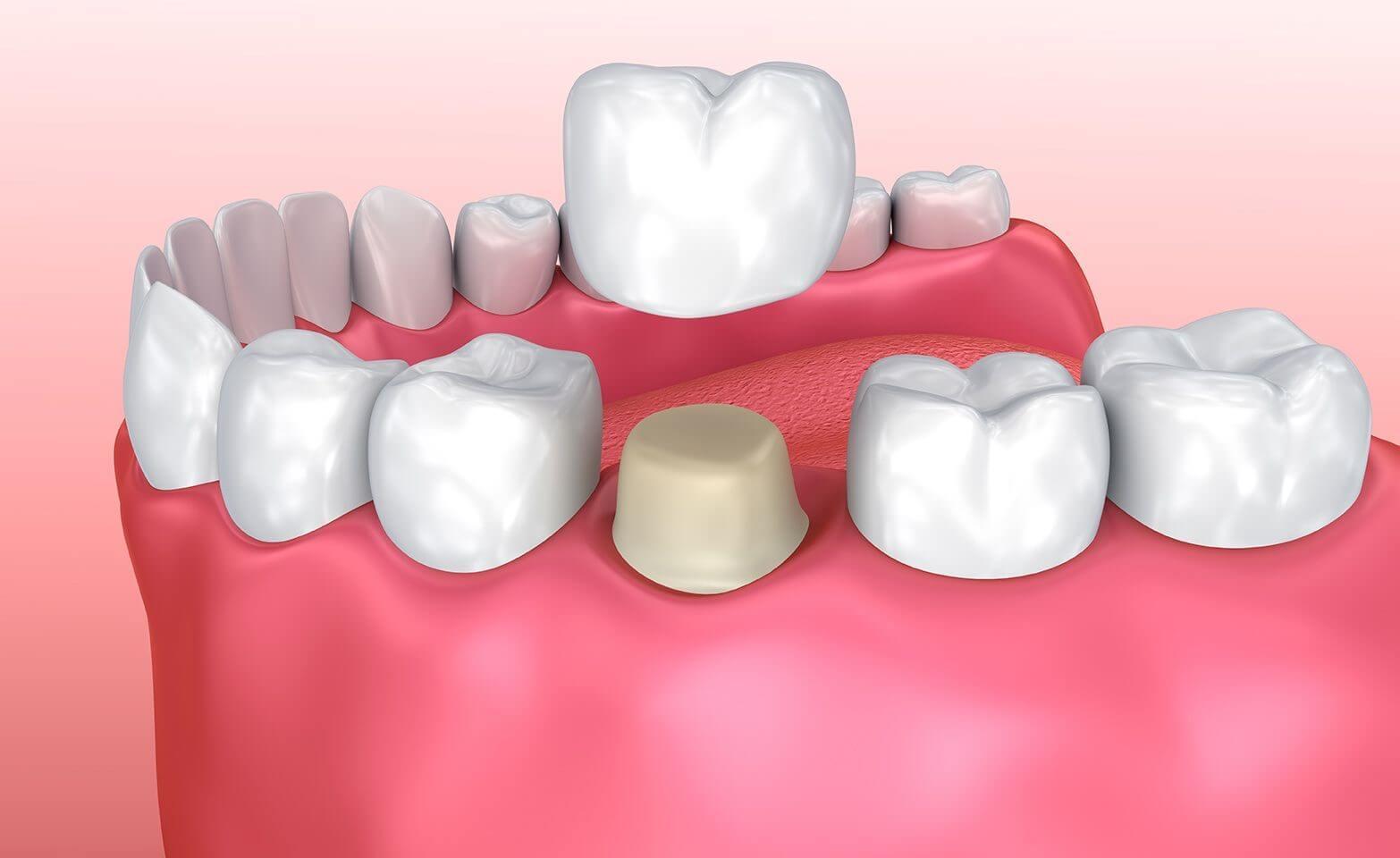 O que são as coroas dentárias?