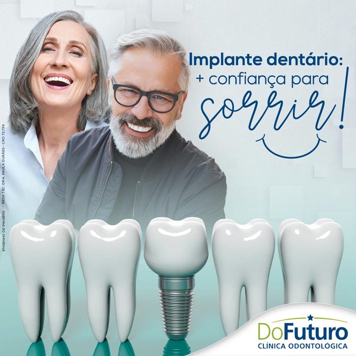 Implante dentário: + confiança para sorrir!